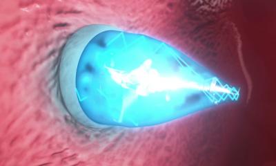 Il catetere smart a luce UV: interventi al cuore senza chirurgia